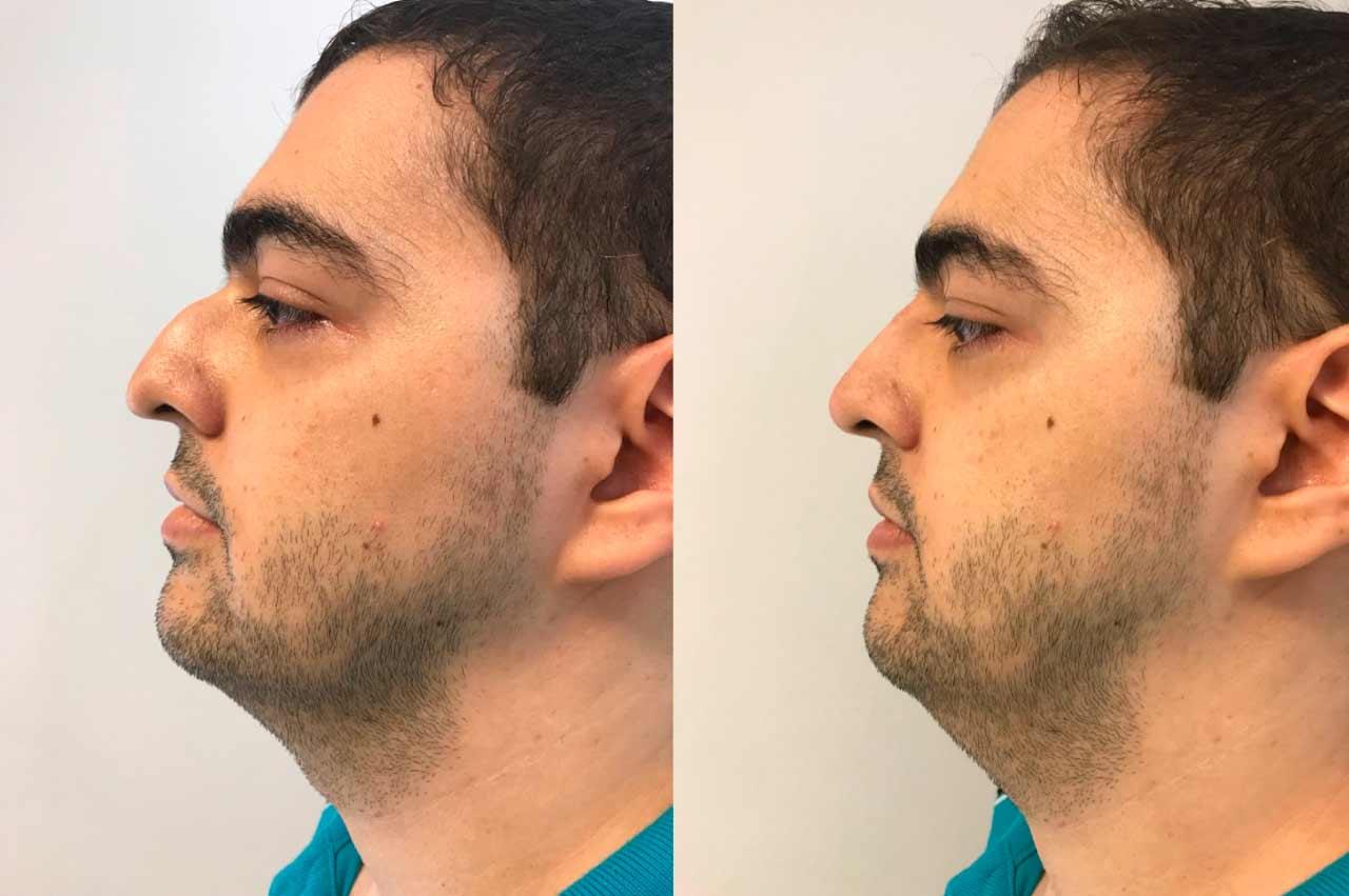Rinomodelacion-sin-cirugia-en-hombre